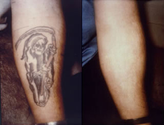 laser-tattoo-removal-tarpon-springs